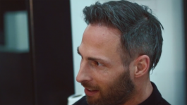Theo's hair transplant story