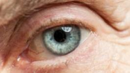 Life is brighter following cataract surgery