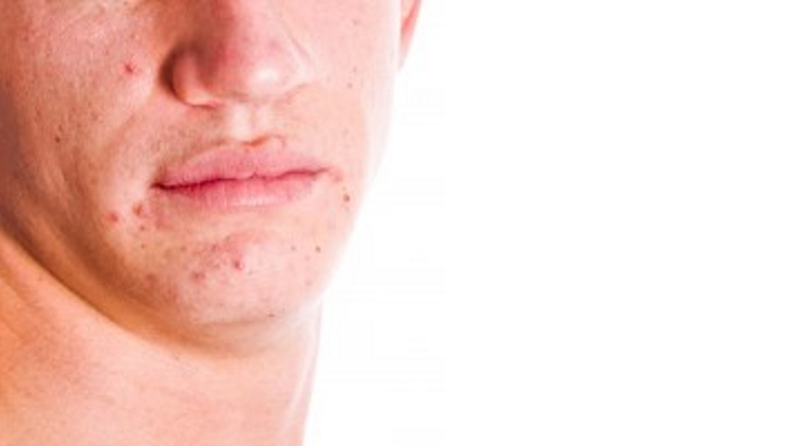 The Importance of Using an Emollient