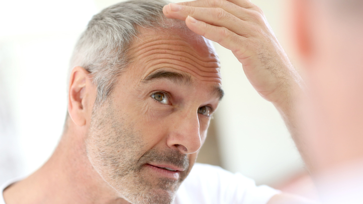 Is a Hair Transplant right for you?