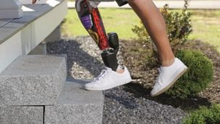 Dorset Orthopaedic introduces the revolutionary BIOM Ankle
