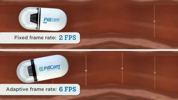Revolutionary technology 'Pillcam' arrives at The GI Unit