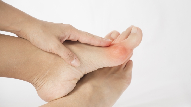 Innovative Minimally Invasive Keyhole Bunion Surgery at The Private Clinic in Harley Street