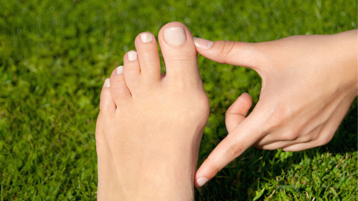 New revolutionary bunion surgery offered at The Private Clinic