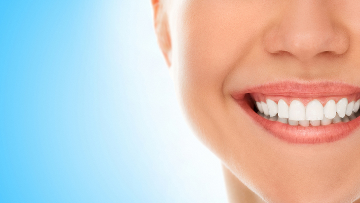 Cosmetic dentistry effect 'improved by good oral hygiene'