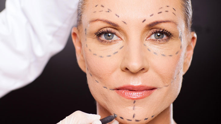 Contour threading for facelifts