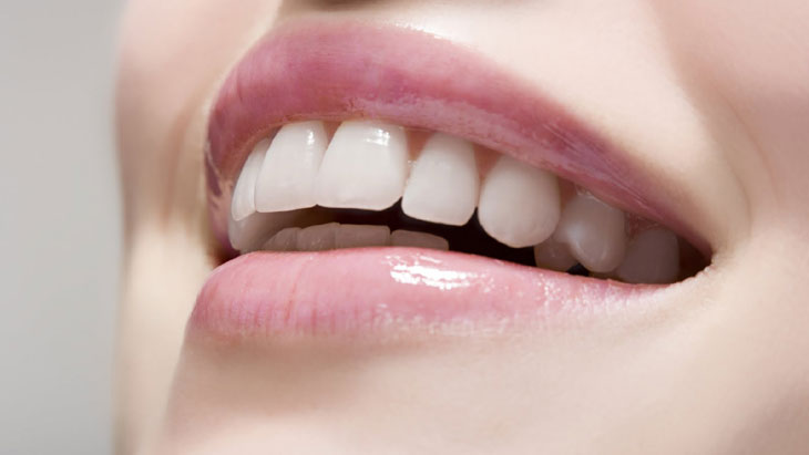 'Invisible' brace for cosmetic dentistry