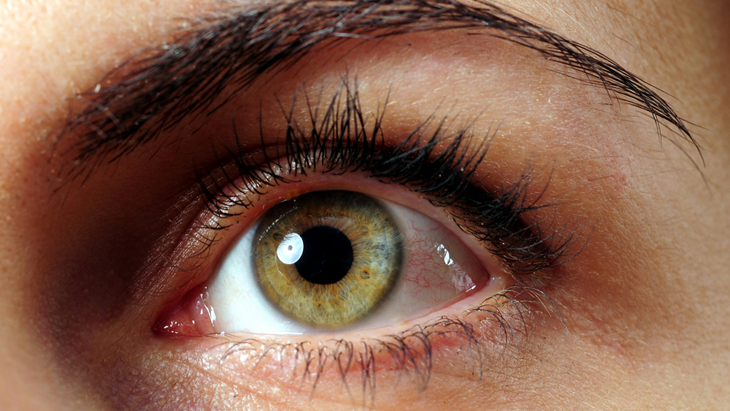 Symptoms, diagnosis and causes of posterior vitreous detachment (floaters and flashes)