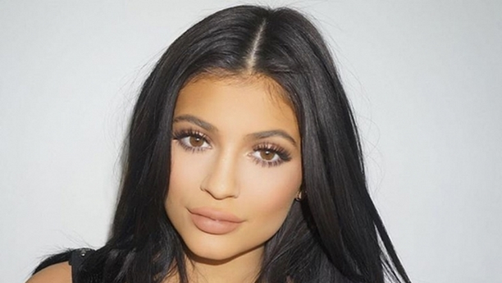 5 Things to Learn from Kylie Jenner About Lip Fillers