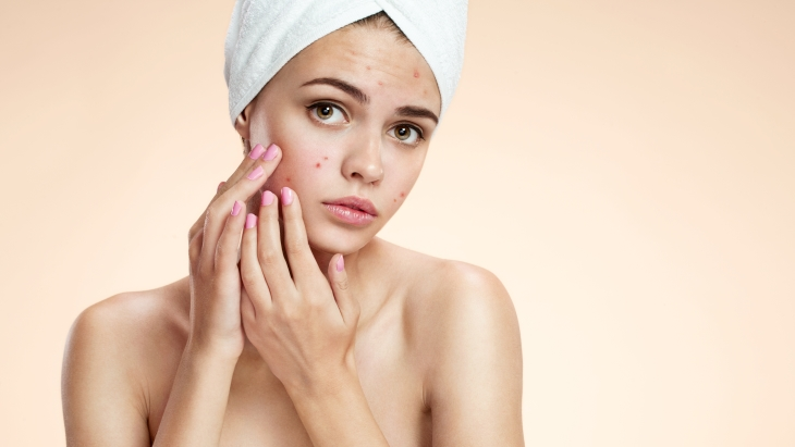 New research reveals how anxiety affects your skin