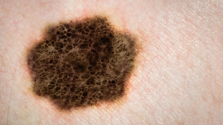 What is involved in a mole removal?