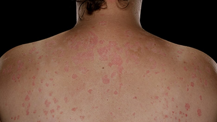 Getting Diagnosed with Psoriasis