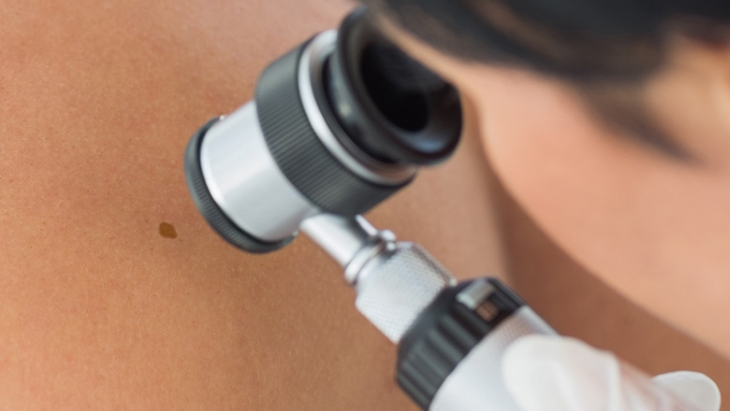 Survey finds people don't know much about skin cancer