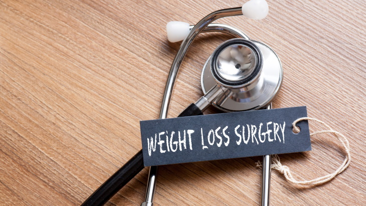 Weight loss surgery - 5 myths that need rethinking