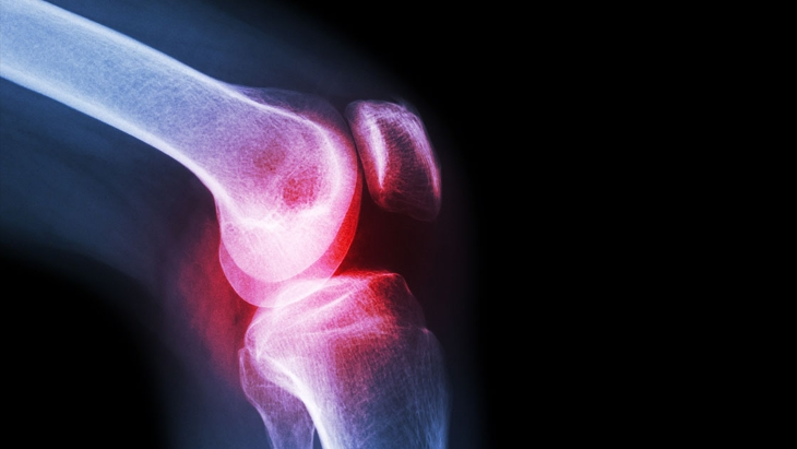 4 signs you may need a knee replacement