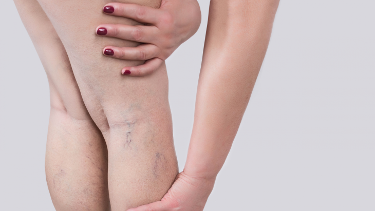 What are the best treatment options for varicose veins?