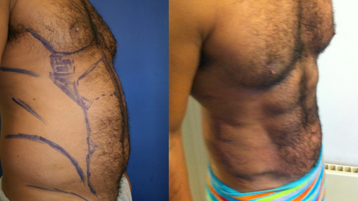 Turning back the years with Vaser Liposuction for Men