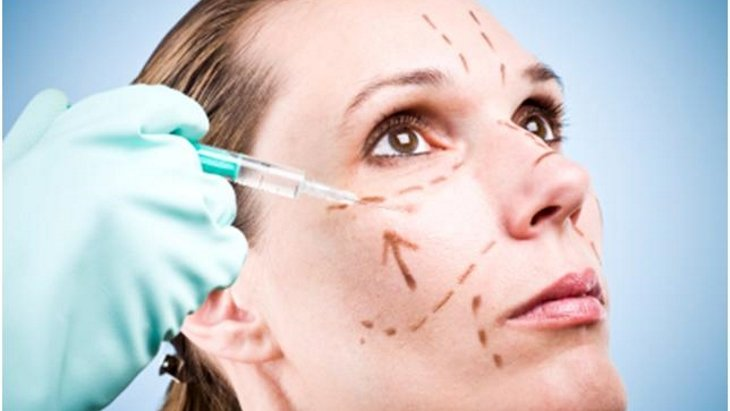 What to expect after a facelift