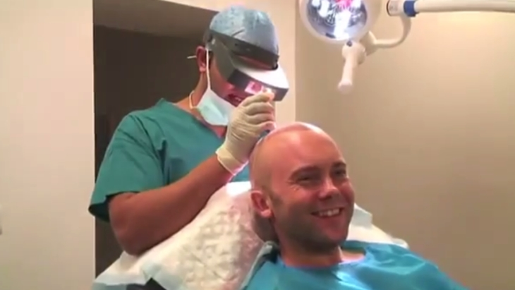 Video patient story: 3G FUE hair transplant surgery at The Private Clinic of Harley Street