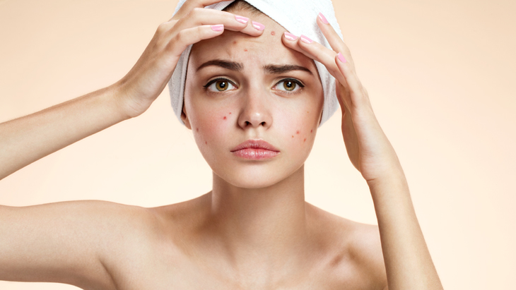 New laser acne treatment at The Private Clinic
