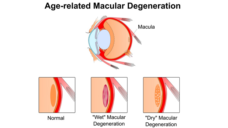 Age Related Macular Degeneration - What You Need To Know