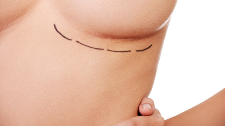 Breast enlargement – the most frequently asked questions