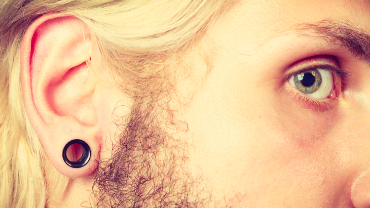 Stretched ear repair to expand your options