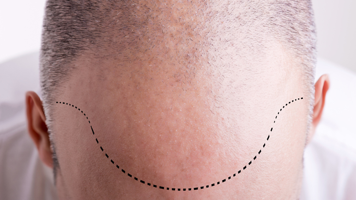The secret to a perfect hairline following a hair transplant