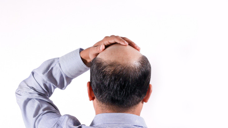 Why are busy business men choosing London Harley Street for Hair Transplants?