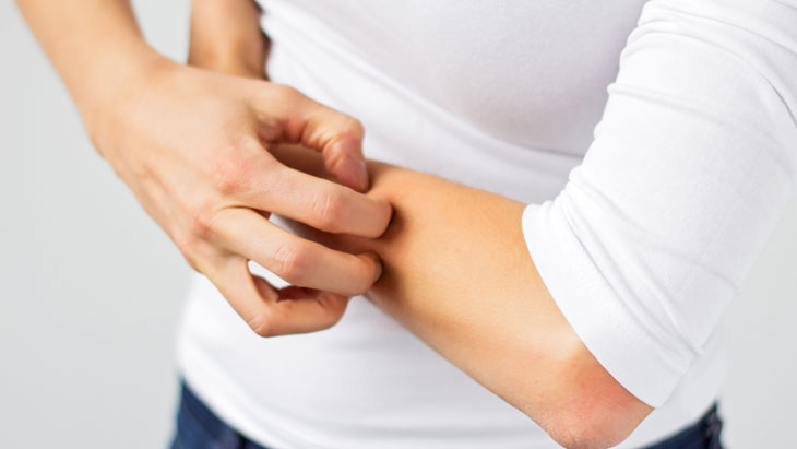 Dry Skin or Atopic Eczema | Health News