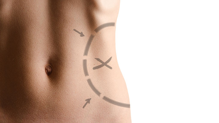 Is liposuction right or you?