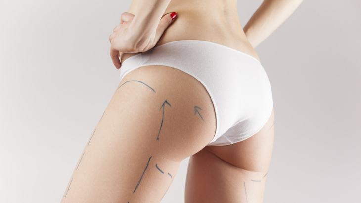 Tummy tuck surgery – is it right for me?