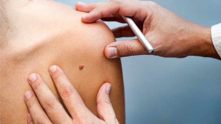 Common Signs and Symptoms of Skin Cancer: All You Need to Know