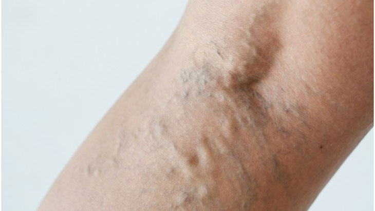 Varicose veins can recur if pelvic veins ignored