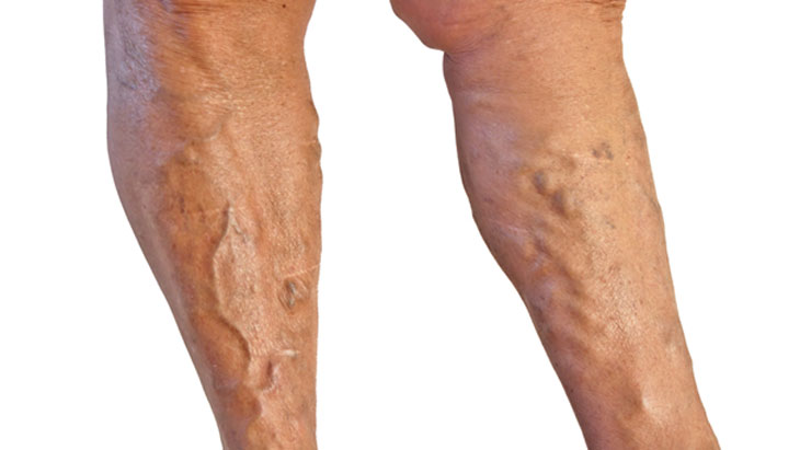 Why do varicose veins recur?