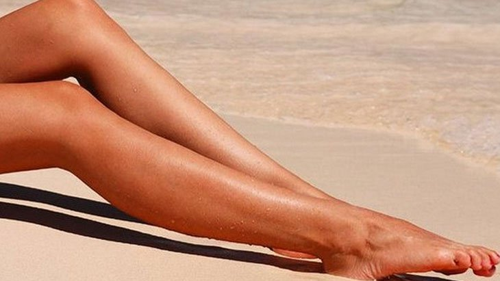 How to cure varicose veins