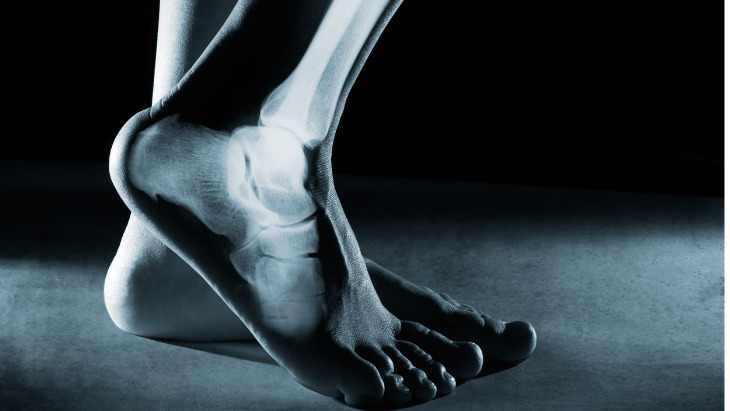 New 3D foot and ankle scanner