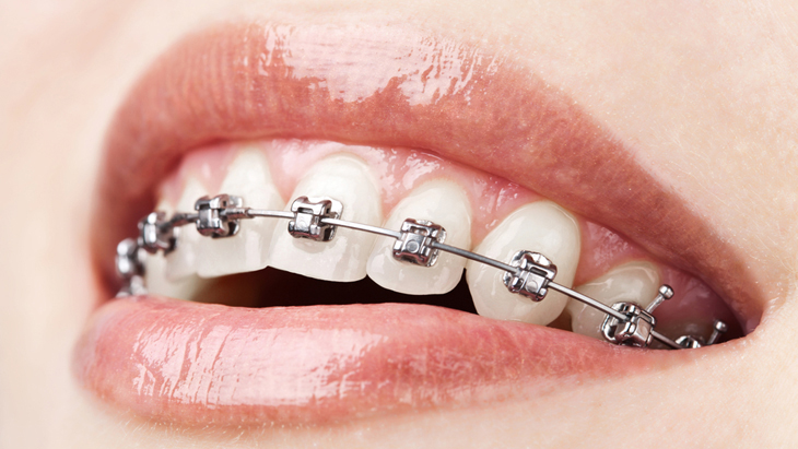 Symptoms, diagnosis and causes of gingival recession