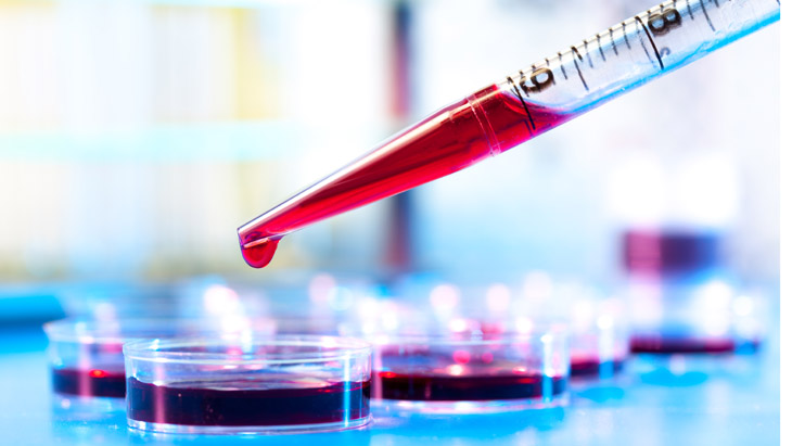 Game changing blood test could diagnose cancer